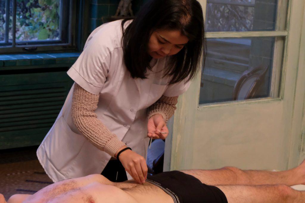 Akupunktura